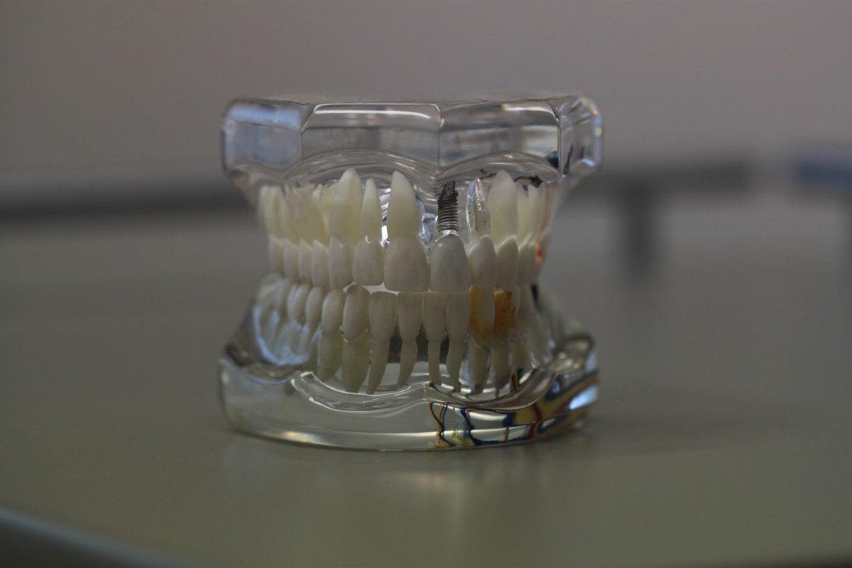 Zła metoda odżywiania się to większe ubytki w zębach oraz również ich brak